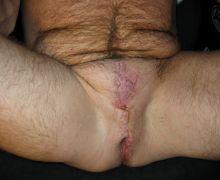 That clitoris eunuch testicles penis agree
