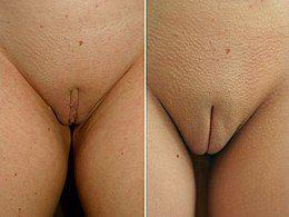 She testicles clit eunuch information